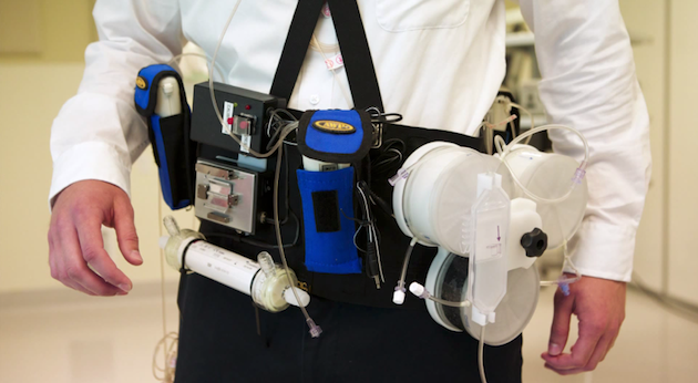 Wearable Artificial Kidneys Waiting For Fda Approval